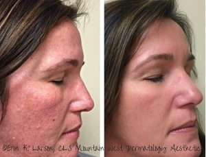 Facelift with clearlift laser