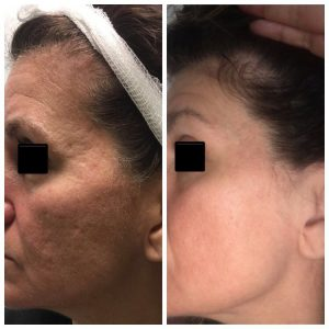 Acne Scars laser treatment