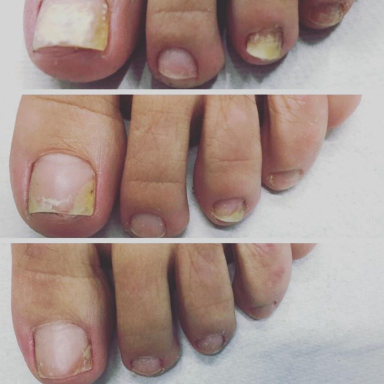 Laser treatment for toenail fungus | Harmony XL Pro | Blog